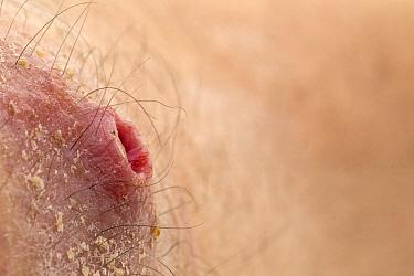 Human Botfly (Dermatobia hominis) breathing hole from larva buried in human skin, Belize  -  Piotr Naskrecki