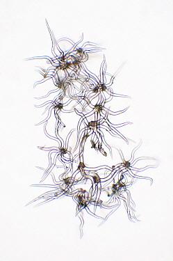 Holm Oak (Quercus ilex) trichomes, magnified 150x