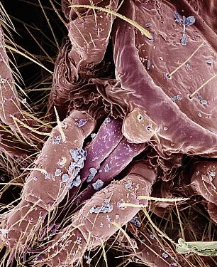 Moss Mite (Oribatidae) gnathosoma magnified 240x  -  Albert Lleal