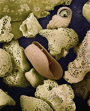 SEM close-up view of foraminiferans, molluscs and other bryozoans found on beach in Formentera, Balearic Islands, Spain  -  Albert Lleal