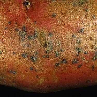 Skin Spot (Polyscytalum pustulans) lesions on the surface of a Red Potato tuber (Solanum tuberosum). Scotland, UK.